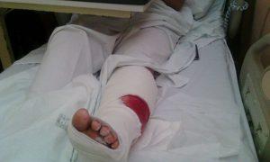 Micaela Riva sufrió una lesión en su pierna izquierda. Foto Familia Riva
