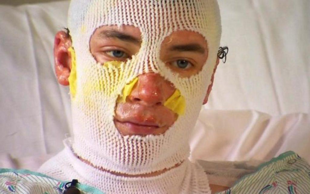 Joven se quema gran parte del cuerpo por salvar a sus sobrinos